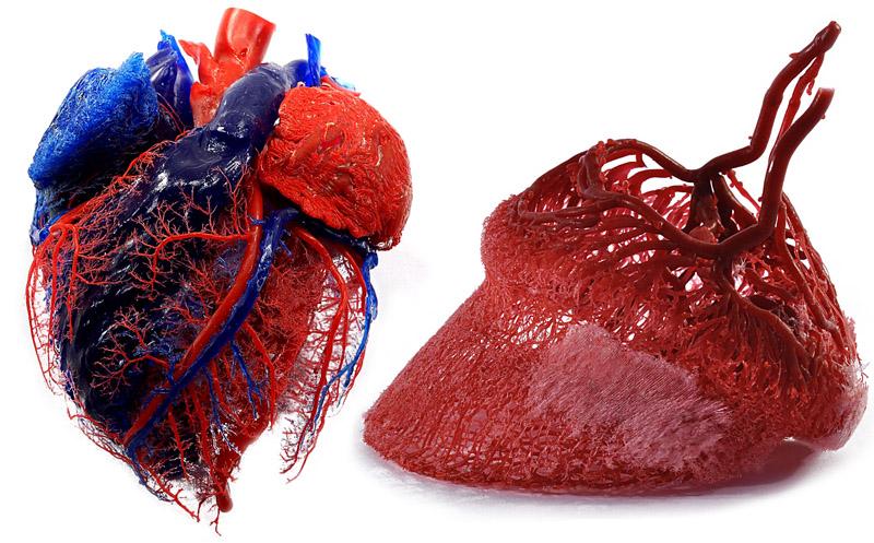 Plastination Anatomy Embedding Plastinates By Dr Christoph Von