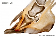 hoof_wall_pathology_laminitis_double