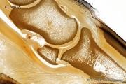 hufgelenk_hufrolle_strahlbein_kronbein_anatomie