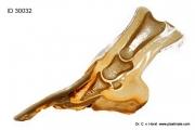 donkey_hoof_foot_anatomy_laminitis_founder