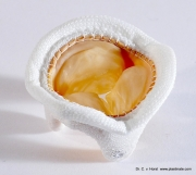 heart-_valve_implant