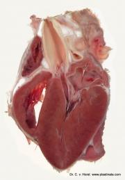 heart_valve_anatomy