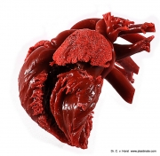 korrosionsanatomie_herz_ausguss_ventrikel